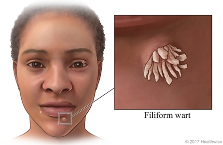Filiform warts on face, with close-up of wart near bottom lip